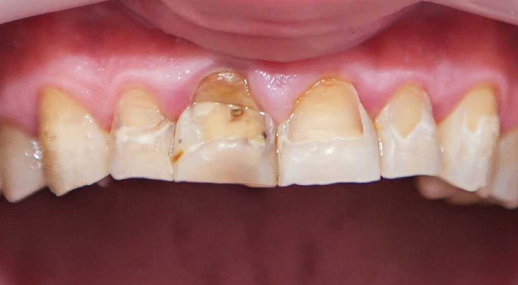 Флюороз зубов также является следствием длительной интоксикации алюминием