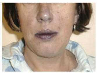 синюшные губы и носогубный треугольник